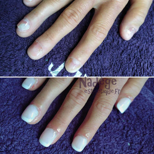 Esthéticienne Ecully Lyon Ongles Chablon french